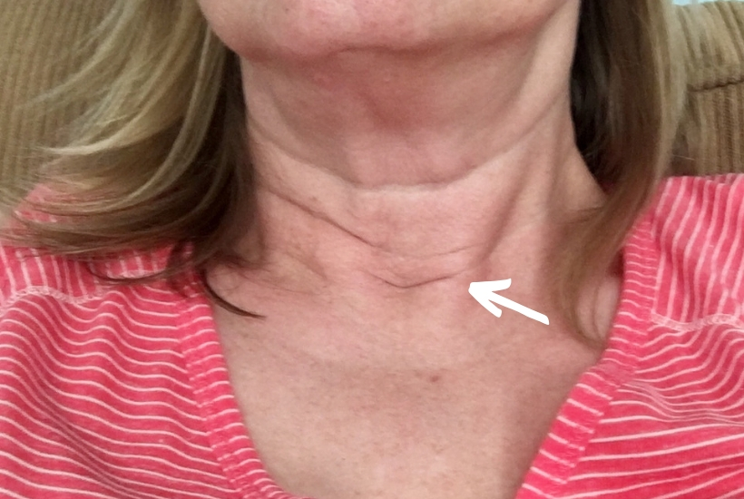 Post-surgical scar after parathyroidectomy