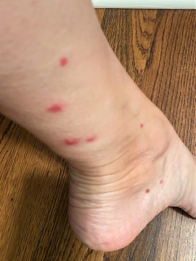 fire ant bites on leg